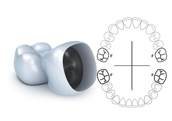 coronas primer molar permanente